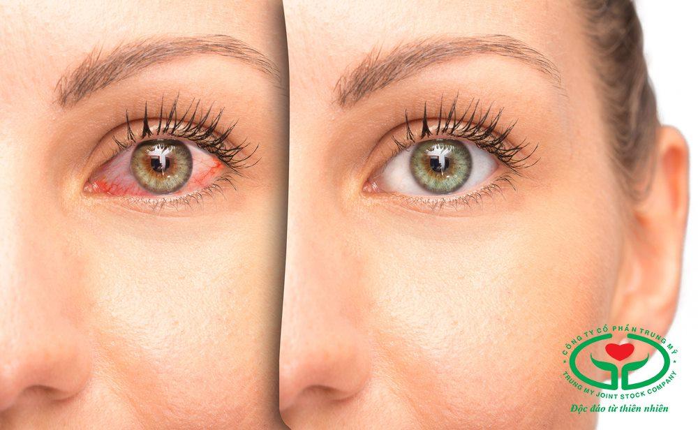Bệnh khô mắt có thể gây ra nhiều biến chứng nguy hiểm